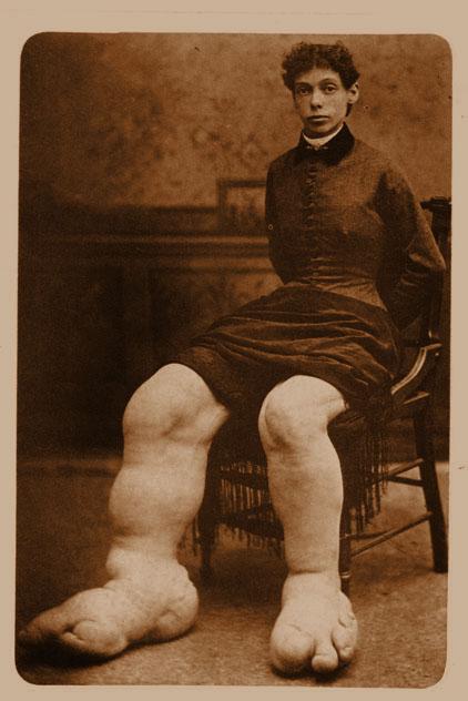 Fannie Mills Ohio Big Foot Girl