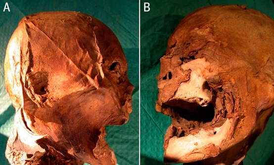 The missing head of French King Henry IV