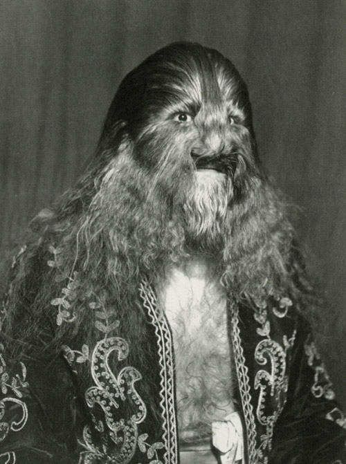 Sideshow performer Lionel the lion-faced man