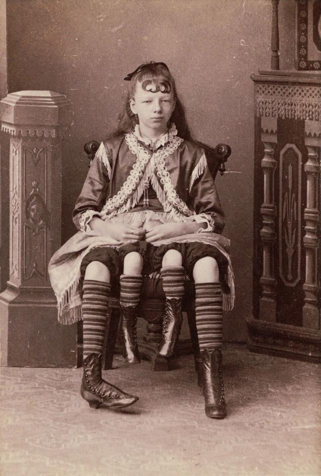 4-legged circus sideshow freak Myrtle Corbin