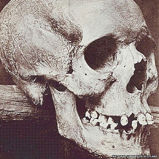 The skull of the Torryburn witch stolen on display in the St Andrews University Museum