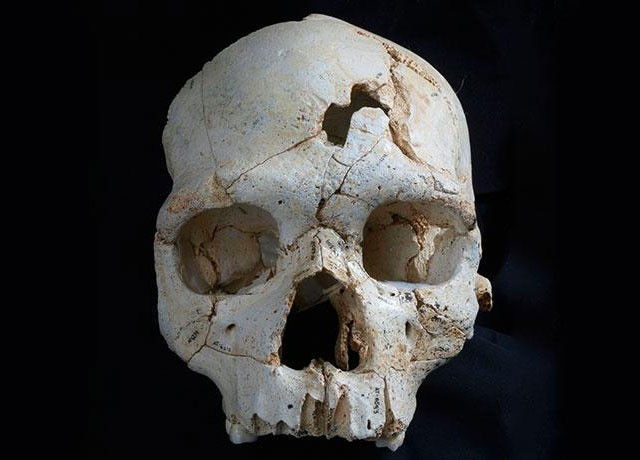 Fractured skull from the Pleistocene may be the earliest known homicide